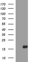 HEK293T cells were transfected with the pCMV6-ENTRY control (Left lane) or pCMV6-ENTRY SIVA1 (Right lane) cDNA for 48 hrs and lysed. Equivalent amounts of cell lysates (5 ug per lane) were separated by SDS-PAGE and immunoblotted with anti-SIVA1.