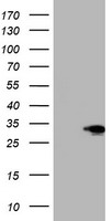 HEK293T cells were transfected with the pCMV6-ENTRY control (Left lane) or pCMV6-ENTRY SIX1 (Right lane) cDNA for 48 hrs and lysed. Equivalent amounts of cell lysates (5 ug per lane) were separated by SDS-PAGE and immunoblotted with anti-SIX1.