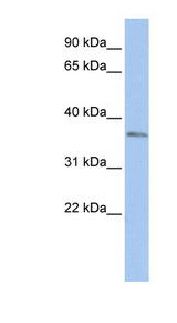 SIX3 antibody Western blot of HepG2 cell lysate. This image was taken for the unconjugated form of this product. Other forms have not been tested.