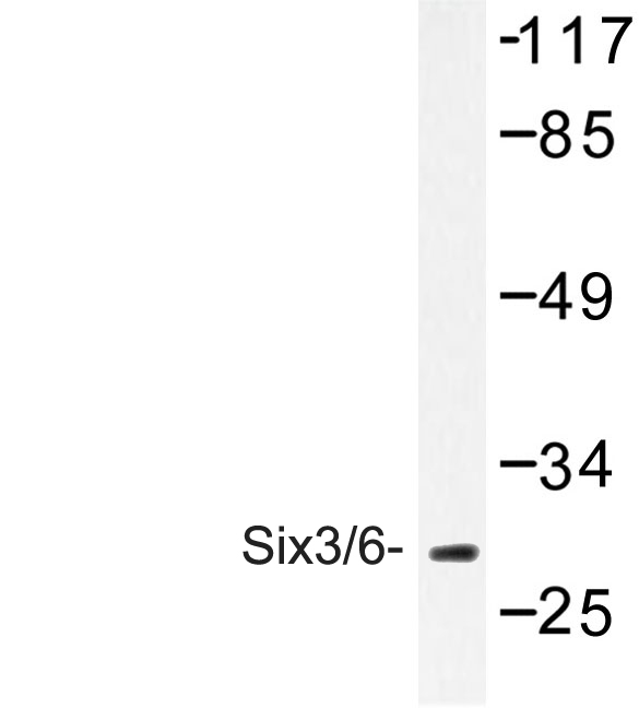 SIX3 + SIX6 Antibody - Western blot of Six3/6 (D228) pAb in extracts from HUVEC cells.