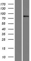 SIX4 Protein - Western validation with an anti-DDK antibody * L: Control HEK293 lysate R: Over-expression lysate