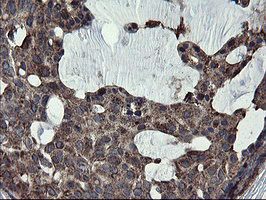 IHC of paraffin-embedded Adenocarcinoma of Human breast tissue using anti-SKIL mouse monoclonal antibody.