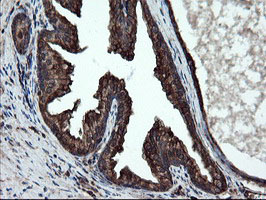 IHC of paraffin-embedded Human prostate tissue using anti-SKIL mouse monoclonal antibody.