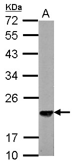 Sample (30 ug of whole cell lysate) A: NIH-3T3 12% SDS PAGE SKP1 antibody diluted at 1:3000
