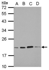 Sample (30 ug of whole cell lysate) A: A549 B: H1299 C: HCT116 D: MCF-7 12% SDS PAGE SKP1 antibody diluted at 1:1000