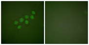 Immunofluorescence analysis of A549 cells, using SKP2/p45 Antibody. The picture on the right is blocked with the synthesized peptide.