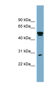 SLA antibody LS-B6827 Western blot of OVCAR-3 cell lysate.  This image was taken for the unconjugated form of this product. Other forms have not been tested.