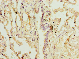 Immunohistochemistry of paraffin-embedded human lung tissue using SLA Antibody at dilution of 1:100