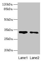Western blot All lanes: SLA antibody at 5µg/ml Lane 1: 293T whole cell lysate Lane 2: A431 whole cell lysate Secondary Goat polyclonal to rabbit IgG at 1/10000 dilution Predicted band size: 32, 20, 34, 28, 36 kDa Observed band size: 32 kDa
