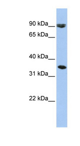 SLC10A7 antibody Western blot of HepG2 cell lysate. This image was taken for the unconjugated form of this product. Other forms have not been tested.