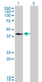 Western Blot analysis of SLC12A1 expression in transfected 293T cell line by SLC12A1 monoclonal antibody (M03), clone 4H4.Lane 1: SLC12A1 transfected lysate(46.5 KDa).Lane 2: Non-transfected lysate.