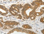 Immunohistochemistry of paraffin-embedded Human colon cancer using SLC12A1 Polyclonal Antibody at dilution of 1:15.