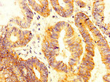 Immunohistochemistry image at a dilution of 1:300 and staining in paraffin-embedded human colon cancer performed on a Leica BondTM system. After dewaxing and hydration, antigen retrieval was mediated by high pressure in a citrate buffer (pH 6.0) . Section was blocked with 10% normal goat serum 30min at RT. Then primary antibody (1% BSA) was incubated at 4 °C overnight. The primary is detected by a biotinylated secondary antibody and visualized using an HRP conjugated SP system.