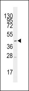 Western blot of anti-SLC16A1 Antibody in CEM cell line lysates (35 ug/lane). SLC16A1 (arrow) was detected using the purified antibody.