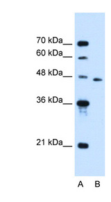 SLC16A12 antibody LS-C40456 Western blot of Jurkat lysate.  This image was taken for the unconjugated form of this product. Other forms have not been tested.