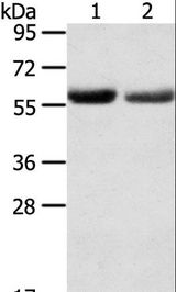 SLC16A9 Antibody - Western blot analysis of Human normal stomach and stomach cancer tissue, using SLC16A9 Polyclonal Antibody at dilution of 1:200.