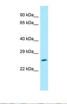 SLC17A1 / VGLUT1 Antibody - Western blot of Human ACHN. SLC17A1 antibody dilution 1.0 ug/ml.  This image was taken for the unconjugated form of this product. Other forms have not been tested.