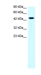 SLC17A2 antibody LS-B1000 Western blot of Jurkat lysate.  This image was taken for the unconjugated form of this product. Other forms have not been tested.