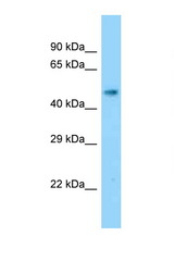 SLC17A2 antibody LS-C146396 Western blot of Mouse Kidney lysate. Antibody concentration 1 ug/ml.  This image was taken for the unconjugated form of this product. Other forms have not been tested.