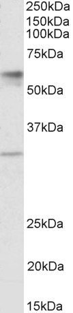 SLC17A5 antibody (1 ug/ml) staining of Human Placenta lysate (35 ug protein in RIPA buffer). Primary incubation was 1 hour. Detected by chemiluminescence.