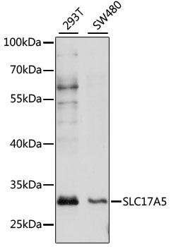 SLC17A5 Antibody - Western blot analysis of extracts of various cell lines, using SLC17A5 antibody at 1:1000 dilution. The secondary antibody used was an HRP Goat Anti-Rabbit IgG (H+L) at 1:10000 dilution. Lysates were loaded 25ug per lane and 3% nonfat dry milk in TBST was used for blocking. An ECL Kit was used for detection and the exposure time was 60s.