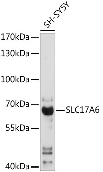 SLC17A6 / VGLUT2 Antibody - Western blot analysis of extracts of SH-SY5Y cells, using SLC17A6 antibody at 1:1000 dilution. The secondary antibody used was an HRP Goat Anti-Rabbit IgG (H+L) at 1:10000 dilution. Lysates were loaded 25ug per lane and 3% nonfat dry milk in TBST was used for blocking. An ECL Kit was used for detection and the exposure time was 5s.