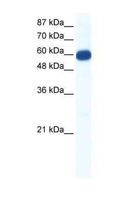 SLC18A1 / VMAT1 antibody LS-B1189 Western blot of Jurkat lysate.  This image was taken for the unconjugated form of this product. Other forms have not been tested.