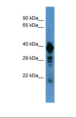 Western blot of Human Hela . SLC18A1 antibody dilution 1.0 ug/ml.  This image was taken for the unconjugated form of this product. Other forms have not been tested.