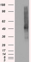 SLC18A2 / VMAT2 Antibody - HEK293T cells were transfected with the pCMV6-ENTRY control (Left lane) or pCMV6-ENTRY SLC18A2 (Right lane) cDNA for 48 hrs and lysed. Equivalent amounts of cell lysates (5 ug per lane) were separated by SDS-PAGE and immunoblotted with anti-SLC18A2.