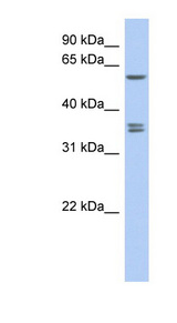 SLC19A3 antibody Western blot of DU145 cell lysate. This image was taken for the unconjugated form of this product. Other forms have not been tested.