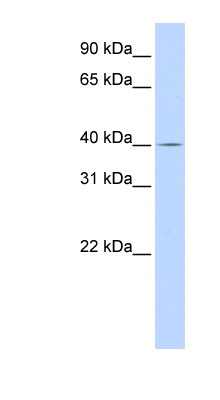 SLC22A18 antibody LS-C110823 Western blot of MCF7 cell lysate.  This image was taken for the unconjugated form of this product. Other forms have not been tested.