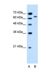 SLC22A3 antibody ARP44026_P050-NP_068812-SLC22A3(solute carrier family 22 (extraneuronal monoamine transporter), member 3) Antibody Western blot of HepG2 cell lysate.  This image was taken for the unconjugated form of this product. Other forms have not been tested.