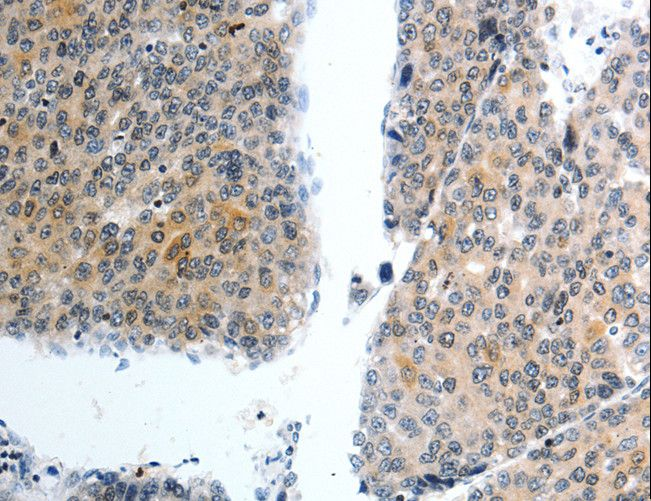 SLC22A3 / OCT3 Antibody - Immunohistochemistry of paraffin-embedded Human liver cancer using SLC22A3 Polyclonal Antibody at dilution of 1:40.