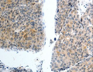 Immunohistochemistry of paraffin-embedded Human liver cancer using SLC22A3 Polyclonal Antibody at dilution of 1:40.