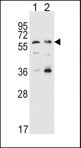 SLC22A4 Antibody western blot of HeLa(lane 1),K562(lane 2) cell line lysates (35 ug/lane). The SLC22A4 antibody detected the SLC22A4 protein (arrow).
