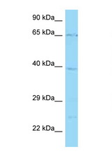 SLC22A5 antibody Western blot of 3 Cell lysate. Antibody concentration 1 ug/ml.  This image was taken for the unconjugated form of this product. Other forms have not been tested.