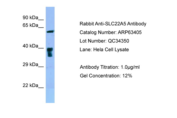 SLC22A5 / OCTN2 Antibody -  This image was taken for the unconjugated form of this product. Other forms have not been tested.