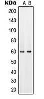Western blot analysis of PAHT expression in HeLa (A); mouse brain (B) whole cell lysates.