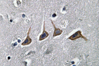 IHC of OAT1 (L304) pAb in paraffin-embedded human brain tissue.