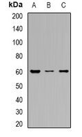 SLC22A8 / OAT3 Antibody - Western blot analysis of OAT3 expression in HEK293T (A); HepG2 (B); SW480 (C) whole cell lysates.