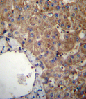 SLC23A1 Antibody immunohistochemistry of formalin-fixed and paraffin-embedded human liver tissue followed by peroxidase-conjugated secondary antibody and DAB staining.
