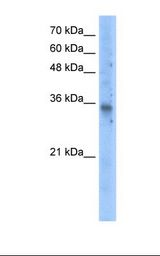 Transfected 293T cell lysate. Antibody concentration: 5.0 ug/ml. Gel concentration: 12%.  This image was taken for the unconjugated form of this product. Other forms have not been tested.