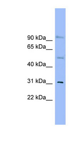 SLC25A25 Antibody - SLC25A25 antibody Western blot of THP-1 cell lysate. This image was taken for the unconjugated form of this product. Other forms have not been tested.