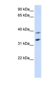 SLC25A34 antibody LS-C102081 Western blot of Placenta lysate.  This image was taken for the unconjugated form of this product. Other forms have not been tested.