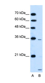 SLC25A39 Antibody - SLC25A39 antibody ARP43962_P050-NP_057100-SLC25A39(solute carrier family 25, member 39) Antibody Western blot of HepG2 cell lysate.  This image was taken for the unconjugated form of this product. Other forms have not been tested.