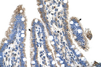 SLC25A39 Antibody - SLC25A39 antibody ARP43962_P050-NP_057100-SLC25A39(solute carrier family 25, member 39) Antibody IHC of formalin-fixed, paraffin-embedded human Intestine. Positive label: Epithelial cells of intestinal villus indicated with arrows. Antibody concentration 4-8 ug/ml. Magnification 400X.  This image was taken for the unconjugated form of this product. Other forms have not been tested.