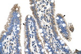 SLC25A39 antibody LS-C40435 IHC of formalin-fixed, paraffin-embedded human Intestine. Positive label: Epithelial cells of intestinal villus indicated with arrows. Antibody concentration 4-8 ug/ml. Magnification 400X.  This image was taken for the unconjugated form of this product. Other forms have not been tested.