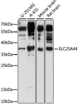 SLC25A44 Antibody - Western blot analysis of extracts of various cell lines, using SLC25A44 antibody at 1:1000 dilution. The secondary antibody used was an HRP Goat Anti-Rabbit IgG (H+L) at 1:10000 dilution. Lysates were loaded 25ug per lane and 3% nonfat dry milk in TBST was used for blocking. An ECL Kit was used for detection and the exposure time was 30s.