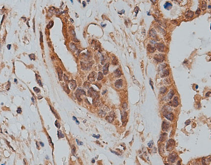 SLC25A46 Antibody - 1:200 staining human colon carcinoma tissue by IHC-P. The tissue was formaldehyde fixed and a heat mediated antigen retrieval step in citrate buffer was performed. The tissue was then blocked and incubated with the antibody for 1.5 hours at 22°C. An HRP conjugated goat anti-rabbit antibody was used as the secondary.