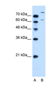SLC26A1 antibody ARP44028_P050-NP_071325-SLC26A1(solute carrier family 26 (sulfate transporter), member 1) Antibody Western blot of HepG2 cell lysate.  This image was taken for the unconjugated form of this product. Other forms have not been tested.